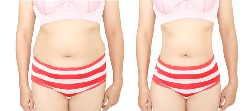 女性のお腹周りの脂肪